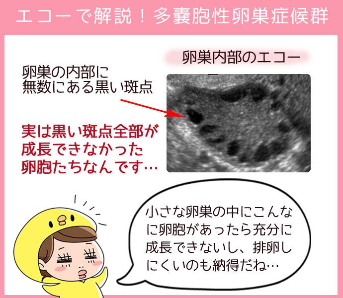 多嚢胞性卵巣症候群のエコー